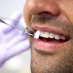 faccette-dentali2