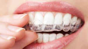 apparecchio-invisibile-chivasso-dentista